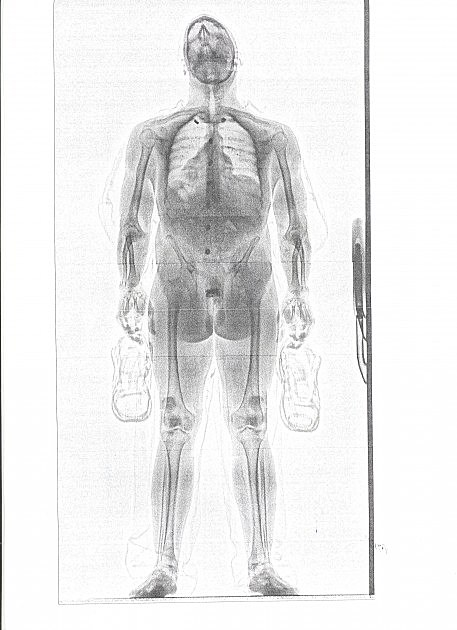 photo of Anthony Alvey's full bodyscan