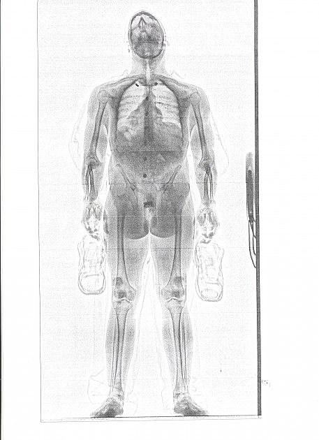 photo of Anthony Alvey's full bodyscan